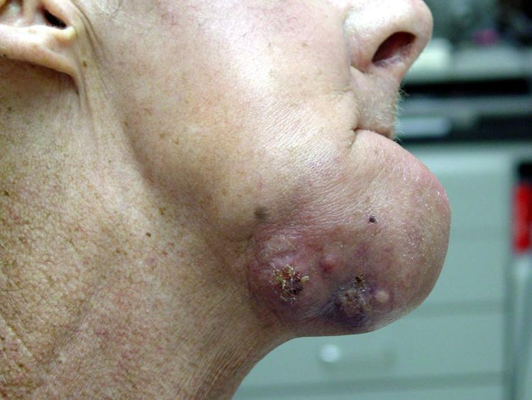 Светлоклеточная опухоль легких.